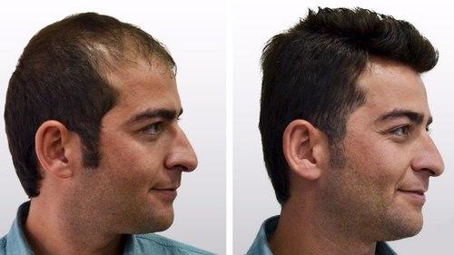 hair transplant in Ludhiana